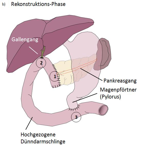 OP-Möglichkeiten - Asklepios Klinikum Harburg